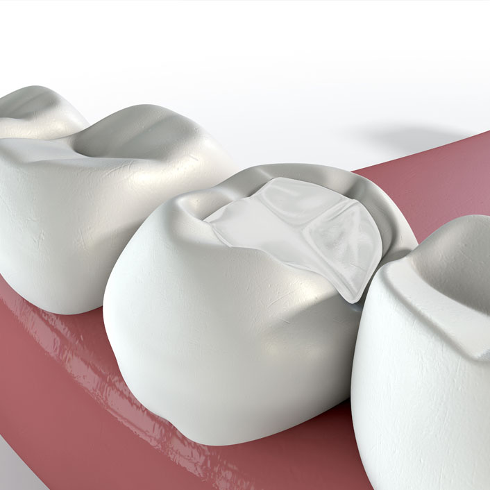 Fillings - Dental Services