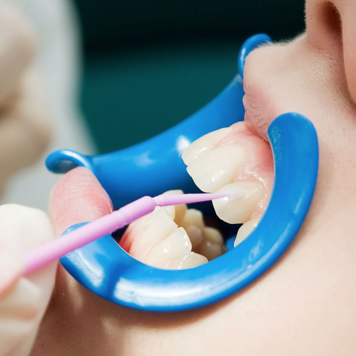 Sealants - Dental Services